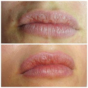 microneedeling lippen
