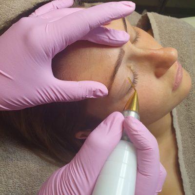 plasma ooglidcorrectie